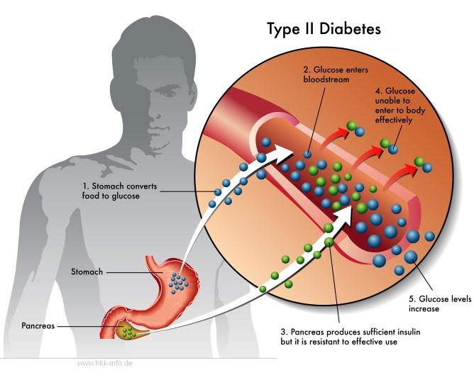 Diabetes Typ 2: Ursachen, Behandlung, Vorbeugung - Dianol ist ein Mittel des Kampfes gegen Diabetes
